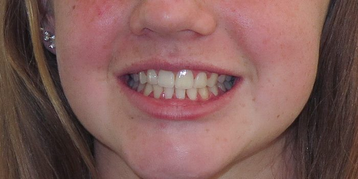 The-Dental-Center_Cedar-Rapids_Hiawatha_Child ortho full face after
