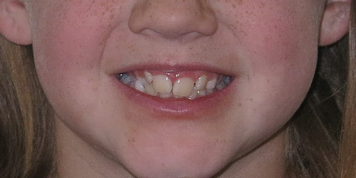 The-Dental-Center_Cedar-Rapids_Hiawatha_Child ortho full face before