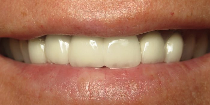The-Dental-Center_Cedar-Rapids_Hiawatha_Crowns Before