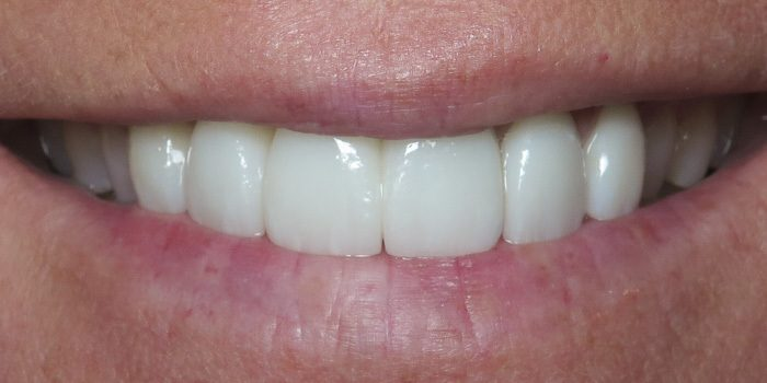 The-Dental-Center_Cedar-Rapids_Hiawatha_Crowns after