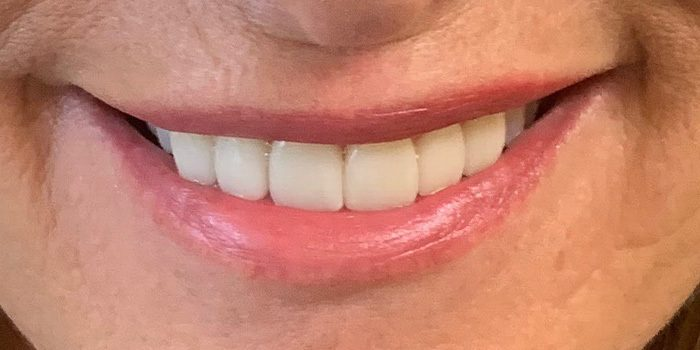 The-Dental-Center_Cedar-Rapids_Hiawatha_Veneers TDC after