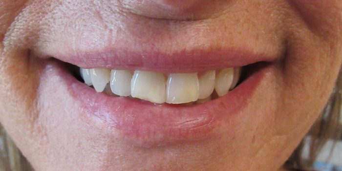 The-Dental-Center_Cedar-Rapids_Hiawatha_Veneers TDC before